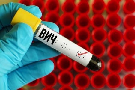 ВИЧ инфекция. Как уберечься от заражения?