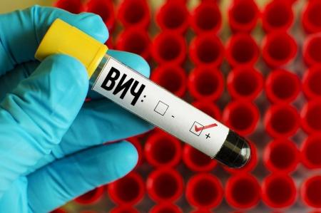 За 10 месяцев выявлены 85 носителей ВИЧ-инфекции