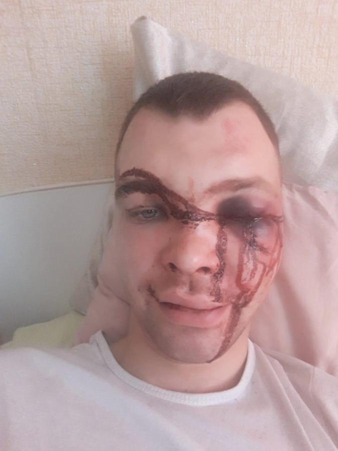 Мама избитого в Северске: Он прислал фотографию, там было месиво, а не лицо